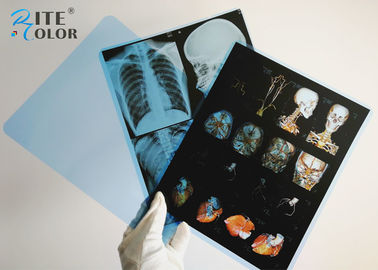 Inkjet Medical Imaging Film X Ray Radiology Film 8 * 10 Inch A4 A3 215 Micron Độ dày
